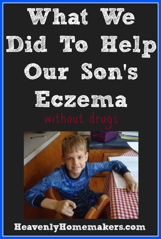 What We Did To Help Our Son's Eczema - Without Drugs